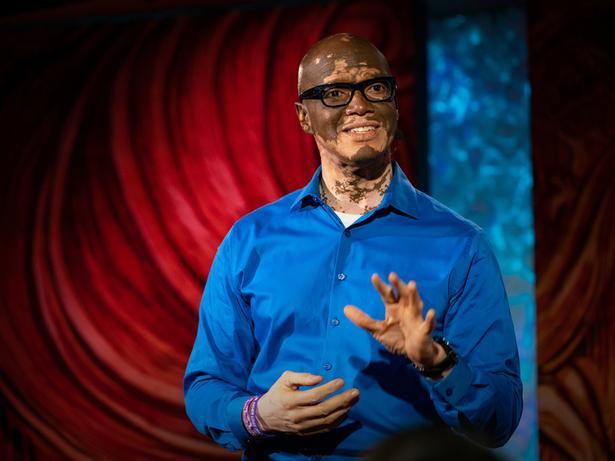 How I help people understand vitiligo   Lee Thomas