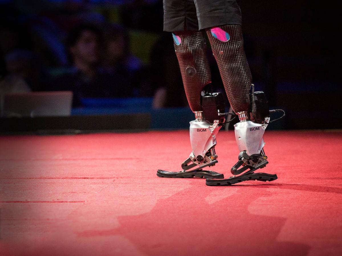 The new bionics that let us run, climb and dance